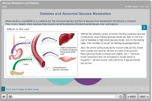 diabetes ss